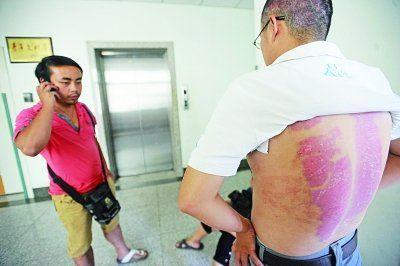 昨日,因担心父亲多疑,大儿子刘培忍着背部取皮伤口的不适,也赶来医院探望父亲。 记者苗剑 摄